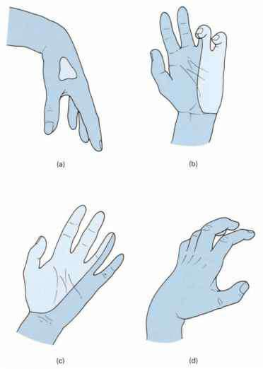 The anatomy of upper limb deformities - Clinical Features