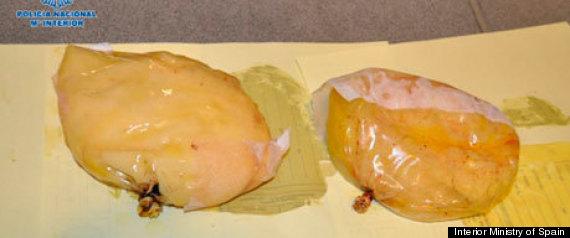 Cocaine breast implants