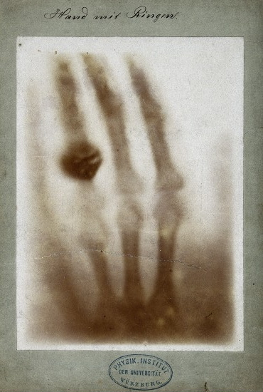 X-ray of the bones of a hand with a ring on one finger, (Wellcome Library).