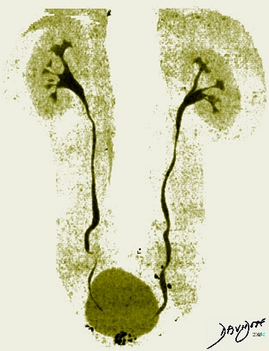 Kidneys Ureters and Bladder in Olive Green on CT Urogram - ART IN ...