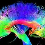 Research: Artists' Brain Structure Is Different