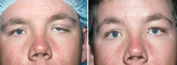 Oculoplasty Surgery in Pune - ptosis surgery