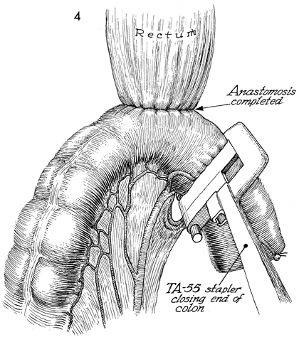 Anterior Resection of the Colon With Low Anastomosis via the