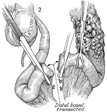 Small Bowel Bypass With Ileoiloeal Anastomosis and Mucous Fistula