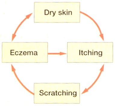 Topical Tip #12 Dry skin prevention is better than cure