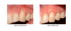 Discover Why Treating Gum Recession Has Never Been Easier™