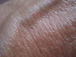 What Are Some Symptoms Of Skin Cancer (3)