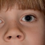 Autism and 'Hypersmell' – Can You Smell That?