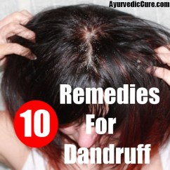 10 Best Home Remedies For Dandruff