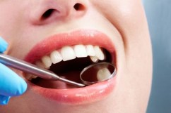 9 Best Home Remedies For Cavities