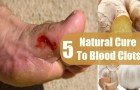 5 Natural Cures For Blood Clots