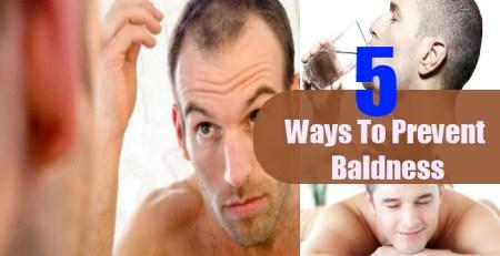 Ways To Prevent Baldness