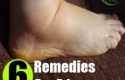 6 Amazing Home Remedies For Edema