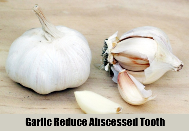 Garlic Reduce Abscessed Tooth