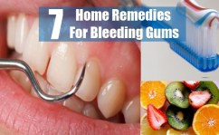 7 Effective Home Remedies For Bleeding Gums