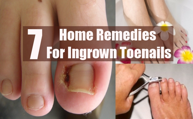 Home Remedies For An Ingrown Toenail Infection