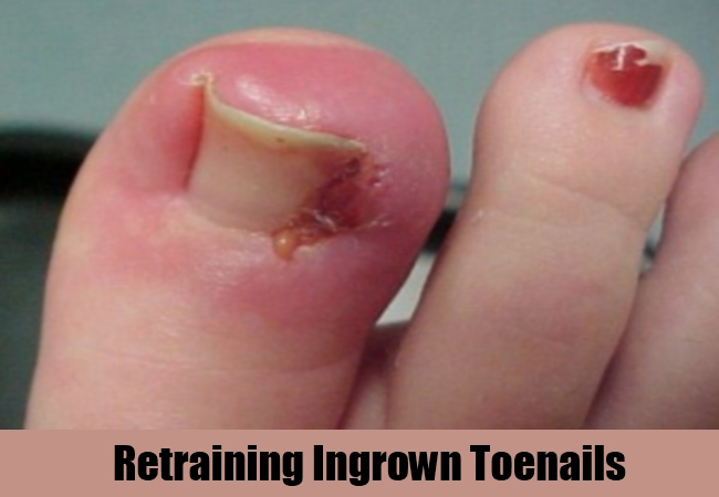 Retraining Ingrown Toenails