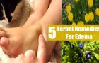 5 Excellent Herbal Remedies For Edema