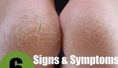 Important Signs And Symptoms Of Cracking Feet