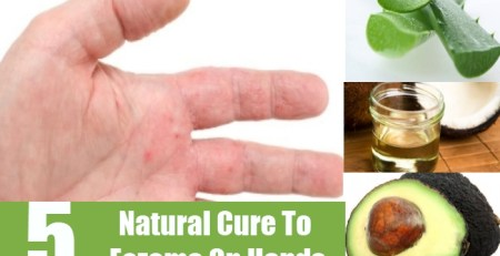 Natural Cure To Eczema On Hands
