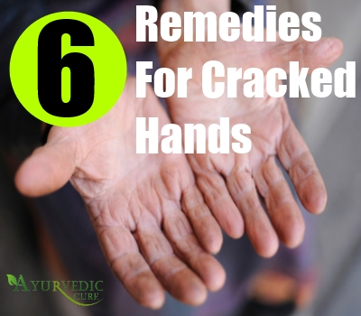 6 Remedies For Cracked Hands