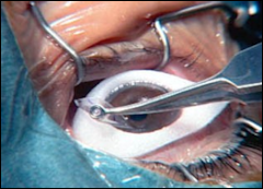 Lasik eye surgery . Eww, it looks gross. But it's cheap, it's safe and it's unregulated and unsubsidized.