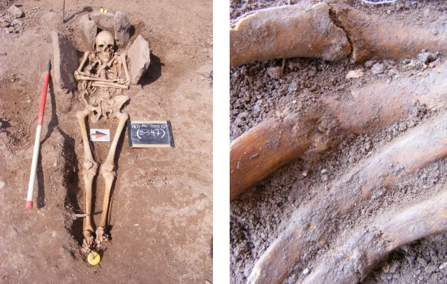 The possible knight with his fracured and unhealed ribs. Image: Headland Archaeology Limited