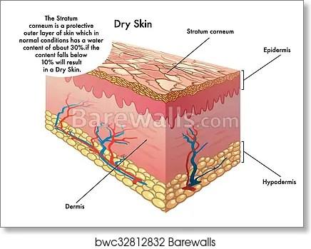 Dry skin, Art Print Barewalls Posters  Prints bwc32812832