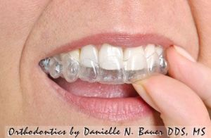wheaton invisalign reviews