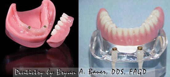 dental implant retained denture with locators