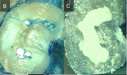 Intentional replantation tooth