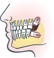 Impacted teeth wisdom tooth extraction