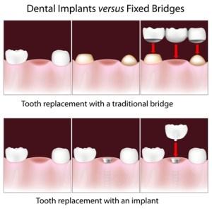 Tooth Implant Dental Implants Fremont Dentist