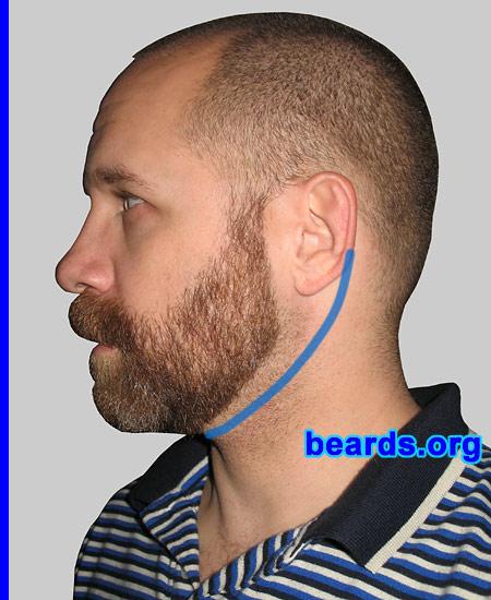 neck line: ear to ear