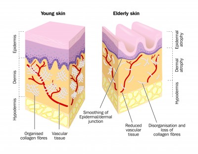 Facial Skin How Different Is It from the Rest of the Body