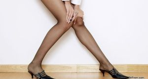 suffered from spider veins on her legs