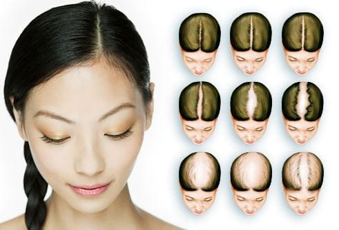 60 Types Of Hair Loss Patterns In Females And Reversible Treatment Inspiration Female Pattern Baldness Pictures