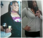 Gastric Bypass Sleeve Before And After Surgery