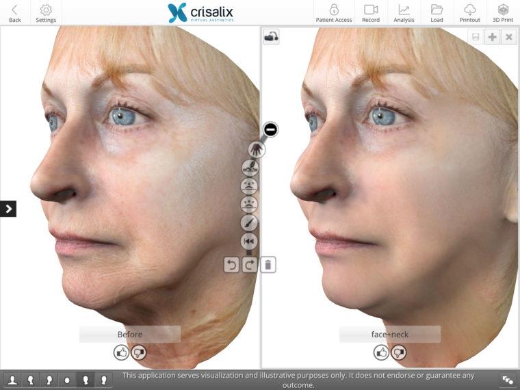 Facelift Surgery - Concept™ Mini-facelift (Rhytidectomy) Bella Vou
