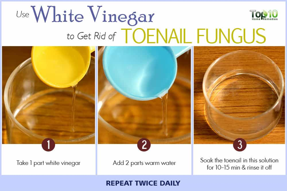 Yellow Toenails Know Details Of It And Get Some Remedies