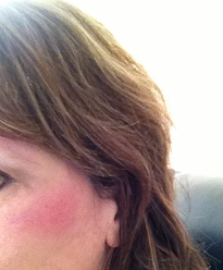 impact rug burn on cheekbone