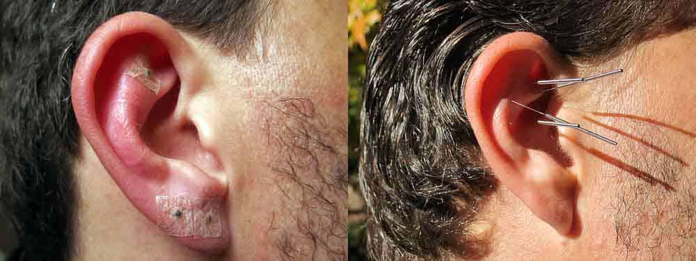 acupuntura para adelgazar acupuntura valencia On tratamiento de acupuntura para adelgazar