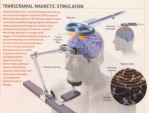 Transcranial Magnetic stimulation (TMS ) for Tinnitus 3