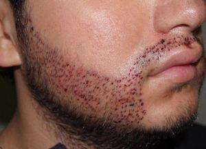 beardpostopp