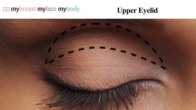corp-Mybreast - Eyelid Surgery