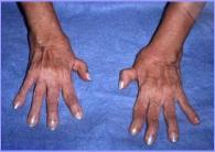 L'artrite reumatoide porta alla irrecuperabile deformazione degli arti di chi ne è affetto (credit: pwp.netcabo.pt)