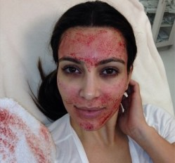 Weird Beauty: Kim Kardashian's Vampire Facial