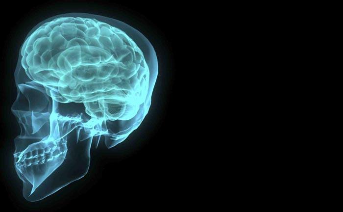 brain scan