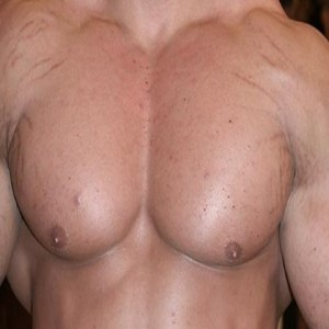 Stretch Marks In Bodybuilders