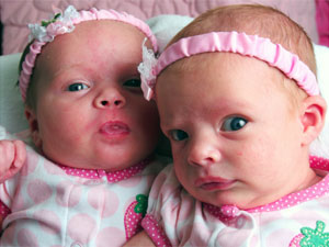 Why Do Most Celebrities Have Twin Babies Boldskycom